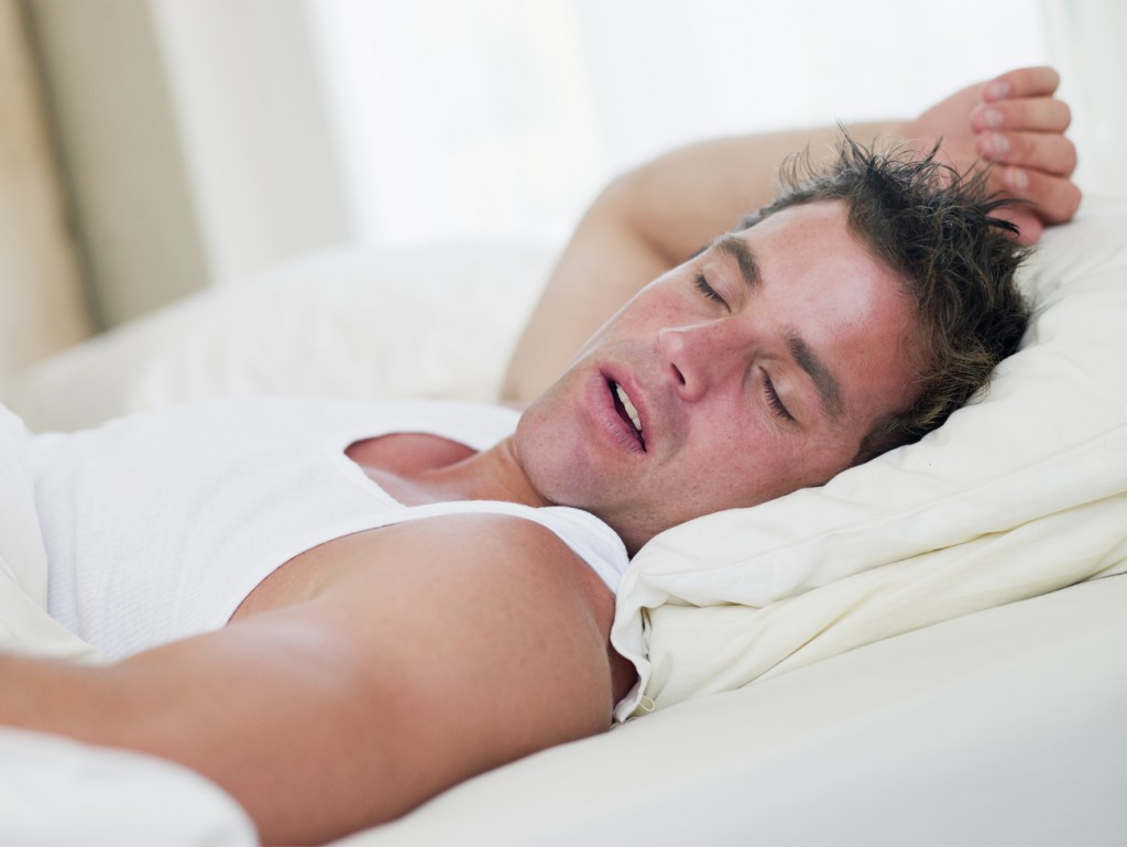A man is lying in bed, sleeping. He appears to be snoring as well because of his obstructive sleep apnea.