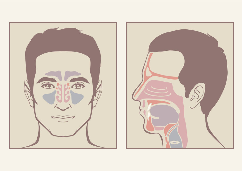 Two diagrams of man's sinuses, suggesting that the causes of chronic sinusitis must be looked into.