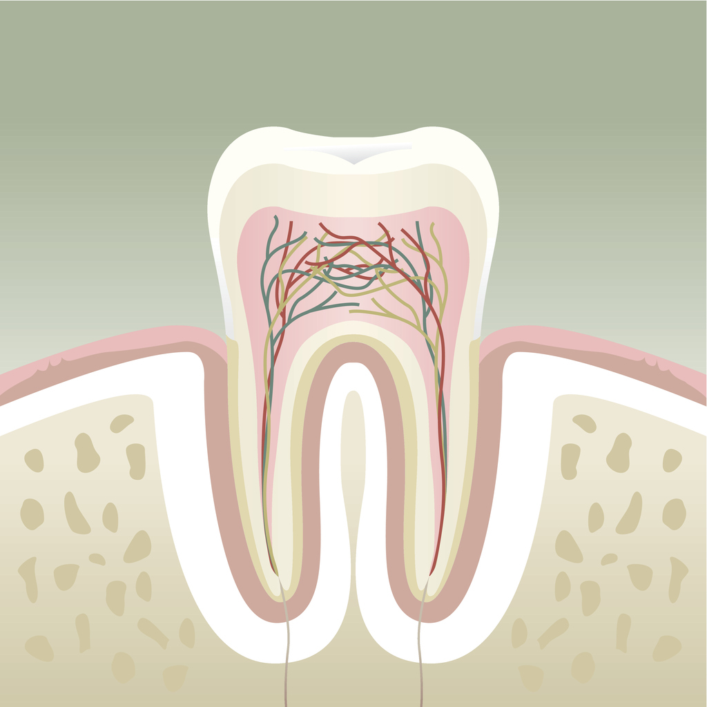 A cross section of a tooth, showing gums. Irritation of the gums by lack of saliva and post nasal drip causes sinus toothache.